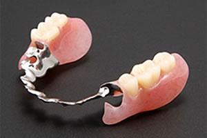一般の義歯