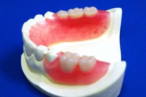 ウェルデンツ義歯