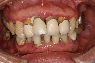 歯周病の症状②