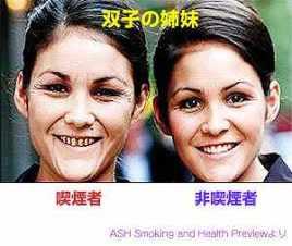 喫煙者と禁煙者比較