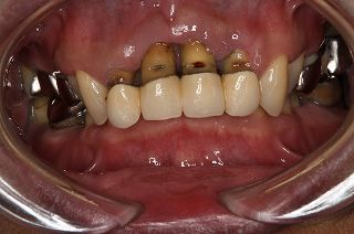 歯周病の症状③