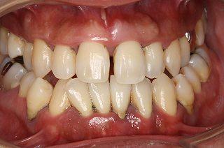 歯周病の症状④