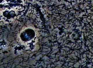 スピロヘーター(歯周病原因菌)