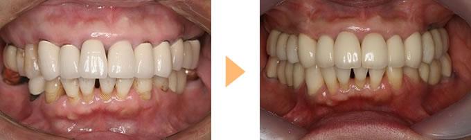 歯周病治療の症例③