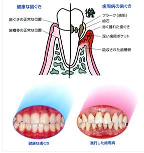 歯周病の特徴